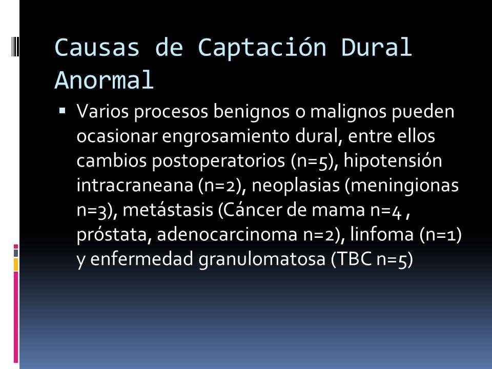 Patrones de Captación Dural n=27