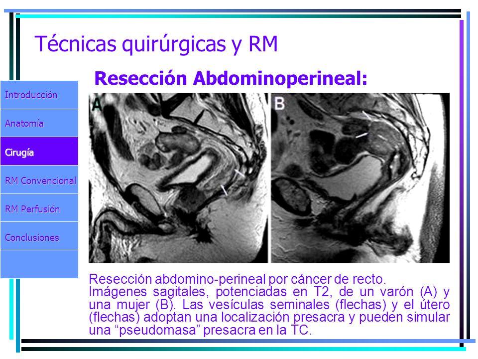 Técnicas quirúrgicas y RM Resección abdomino-perineal por cáncer de recto. Imágenes sagitales, potenciadas en T2, de un varón (A) y una mujer (B). Las