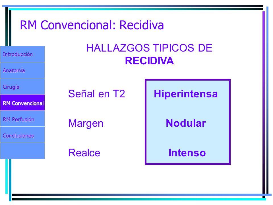 RM Convencional: Recidiva IntroducciónAnatomíaCirugía RM Convencional RM Perfusión Conclusiones HALLAZGOS TIPICOS DE RECIDIVA Señal en T2 Hiperintensa