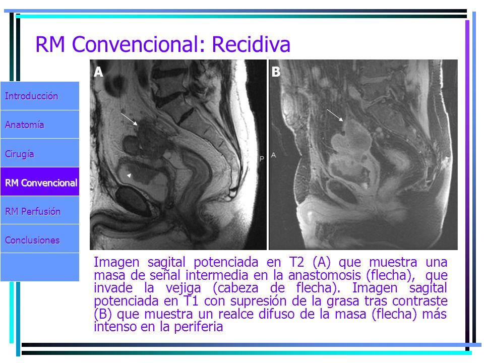 RM Convencional: Recidiva Imagen sagital potenciada en T2 (A) que muestra una masa de señal intermedia en la anastomosis (flecha), que invade la vejig