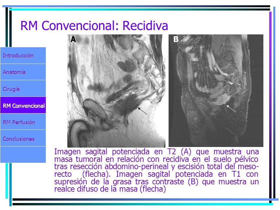 RM Convencional: Recidiva Imagen sagital potenciada en T2 (A) que muestra una masa tumoral en relación con recidiva en el suelo pélvico tras resección