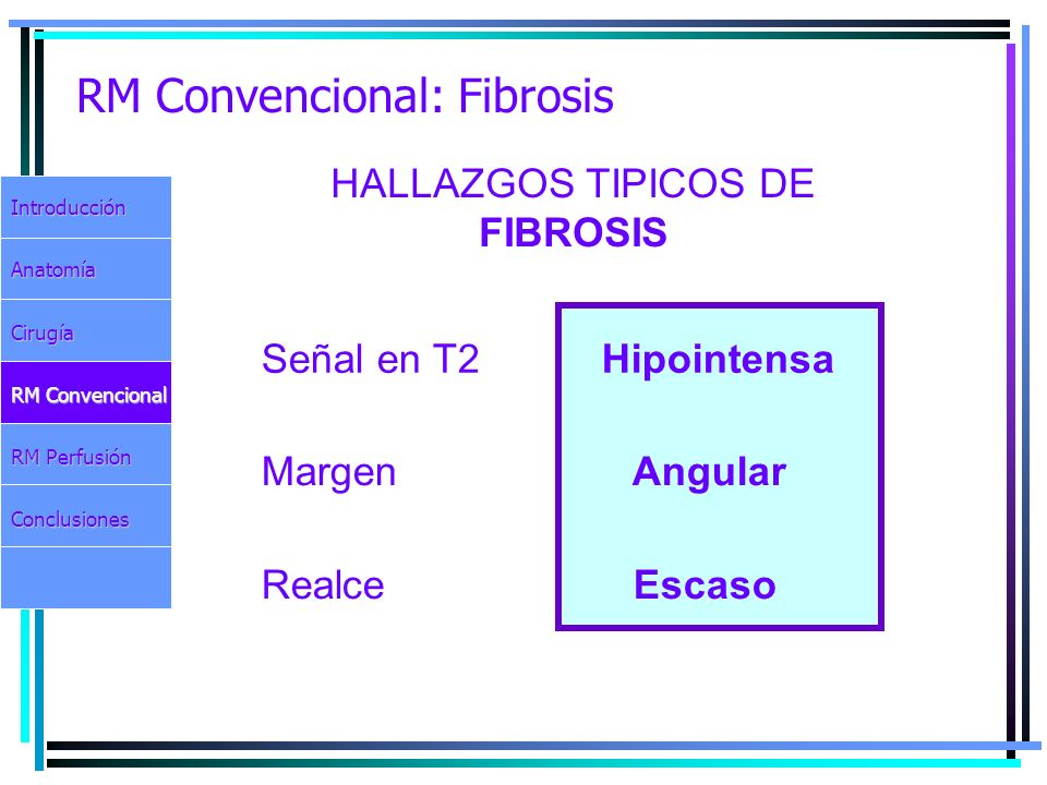 RM Convencional: Fibrosis IntroducciónAnatomíaCirugía RM Convencional RM Perfusión Conclusiones HALLAZGOS TIPICOS DE FIBROSIS Señal en T2 Hipointensa