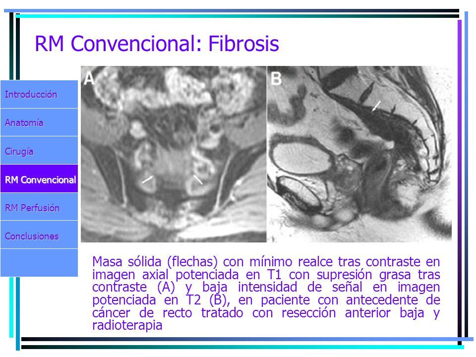 RM Convencional: Fibrosis Masa sólida (flechas) con mínimo realce tras contraste en imagen axial potenciada en T1 con supresión grasa tras contraste (