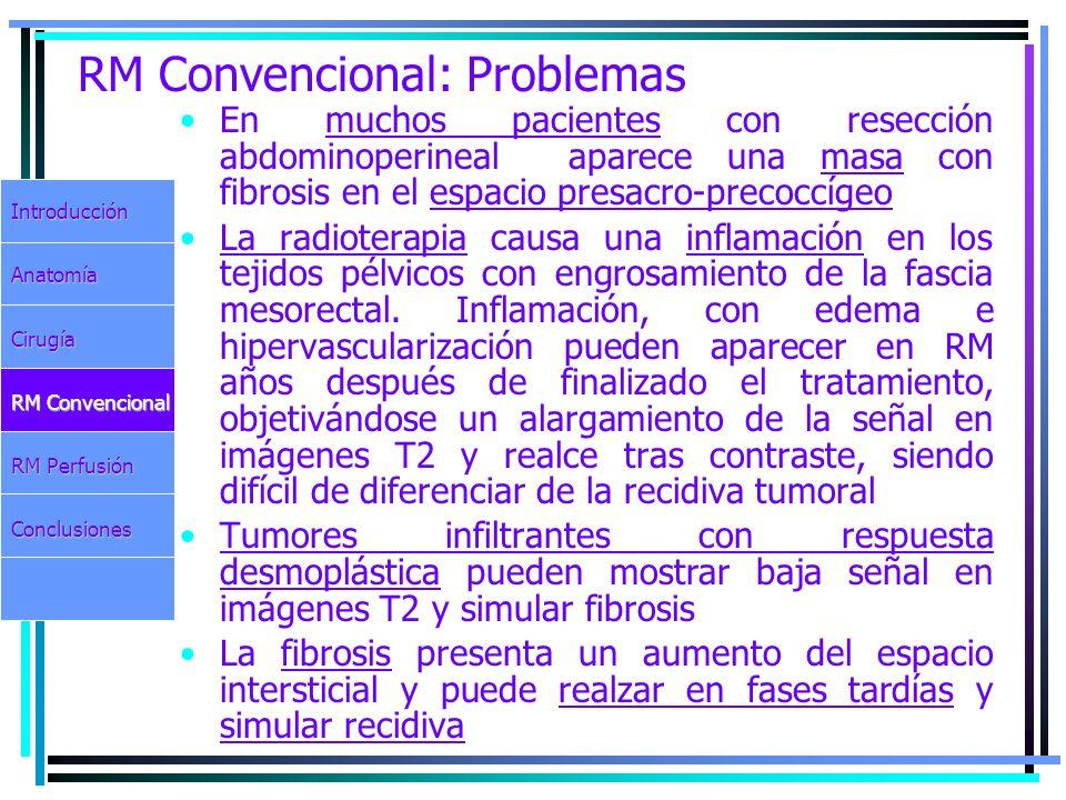RM Convencional: Problemas En muchos pacientes con resección abdominoperineal aparece una masa con fibrosis en el espacio presacro-precoccígeo La radi