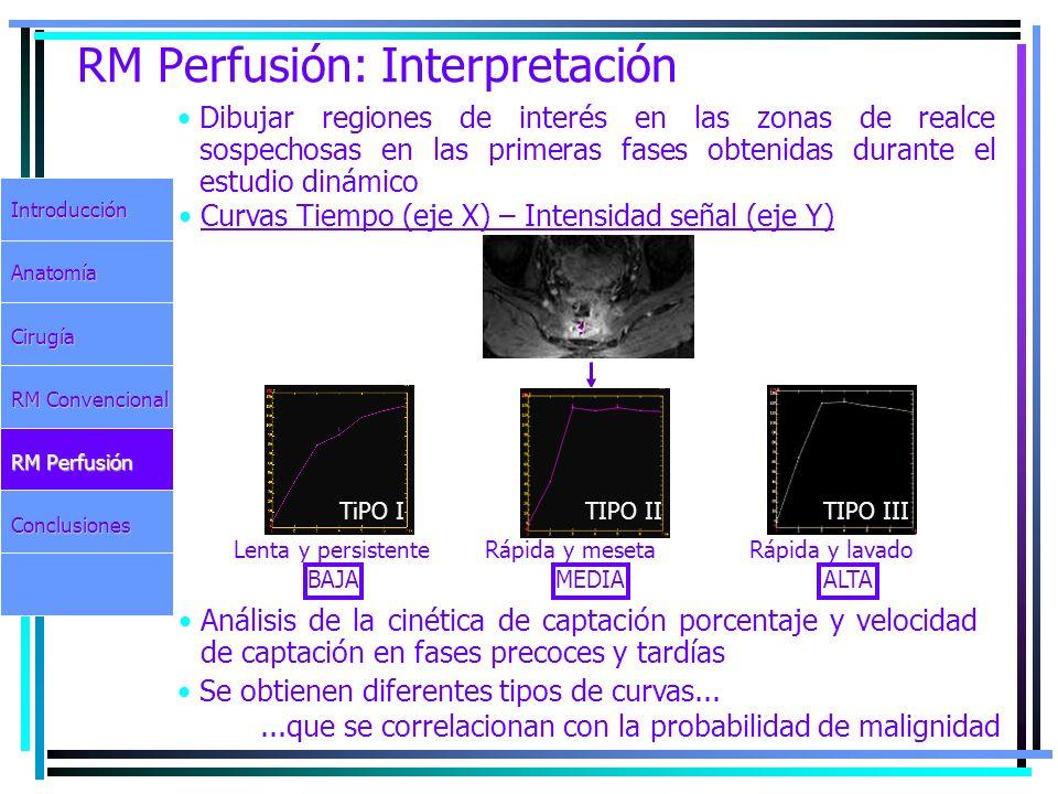 RM Perfusión: Interpretación Dibujar regiones de interés en las zonas de realce sospechosas en las primeras fases obtenidas durante el estudio dinámic