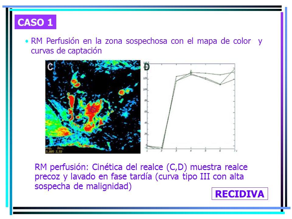 RM Perfusión en la zona sospechosa con el mapa de color y curvas de captación RM perfusión: Cinética del realce (C,D) muestra realce precoz y lavado e