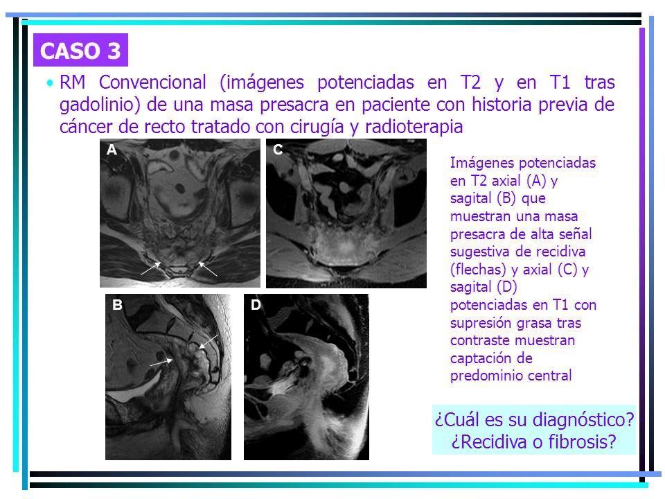 RM Convencional (imágenes potenciadas en T2 y en T1 tras gadolinio) de una masa presacra en paciente con historia previa de cáncer de recto tratado co