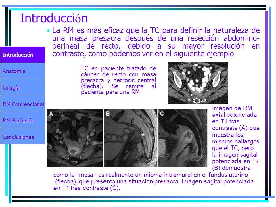 Introducci ó n IntroducciónAnatomíaCirugía RM Convencional RM Perfusión Conclusiones La RM es más eficaz que la TC para definir la naturaleza de una m