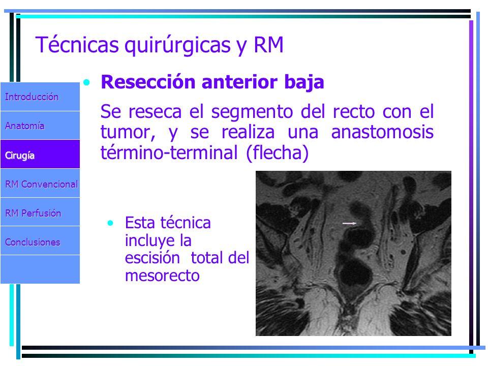 Técnicas quirúrgicas y RM Resección anterior baja Se reseca el segmento del recto con el tumor, y se realiza una anastomosis término-terminal (flecha)