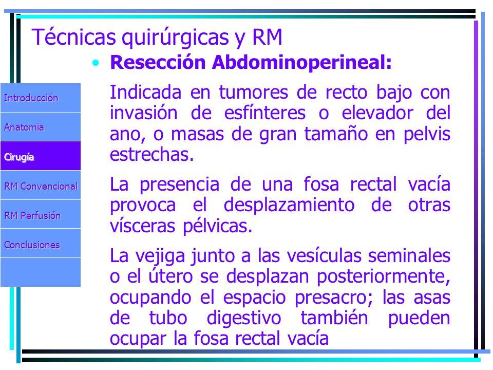 Técnicas quirúrgicas y RM Resección Abdominoperineal: Indicada en tumores de recto bajo con invasión de esfínteres o elevador del ano, o masas de gran