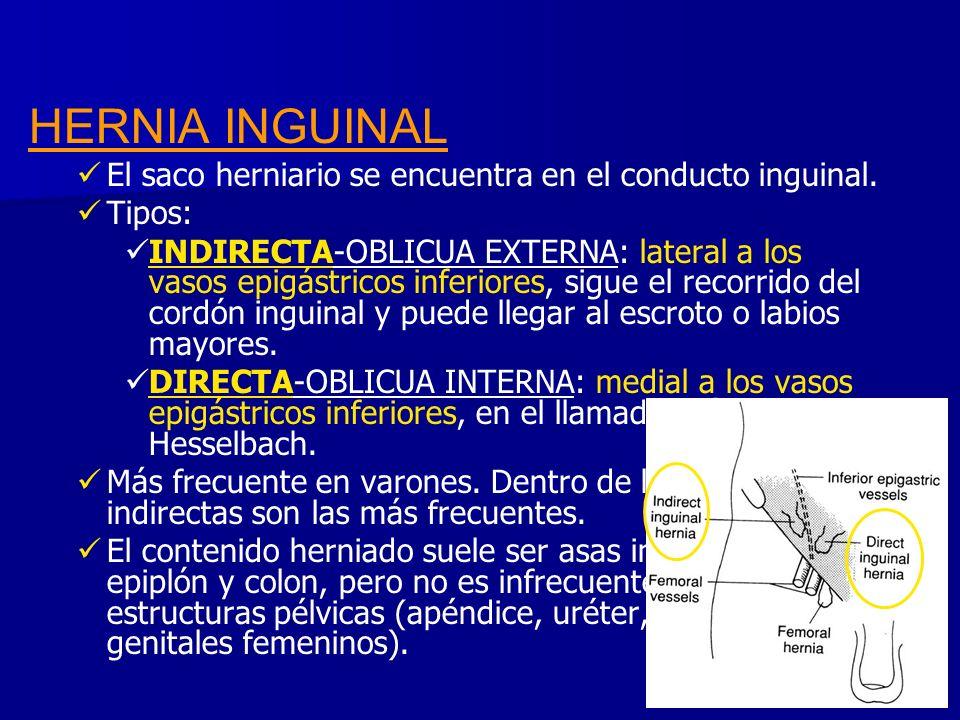 HERNIA INGUINAL El saco herniario se encuentra en el conducto inguinal. Tipos: INDIRECTA-OBLICUA EXTERNA: lateral a los vasos epigástricos inferiores,