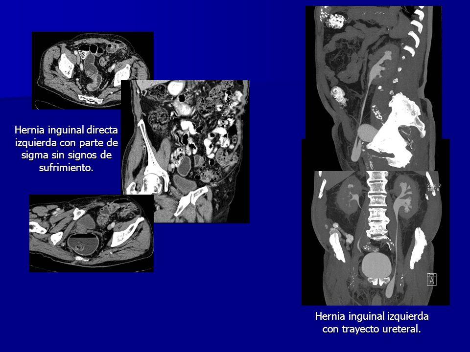 Hernia inguinal directa izquierda con parte de sigma sin signos de sufrimiento. Hernia inguinal izquierda con trayecto ureteral.