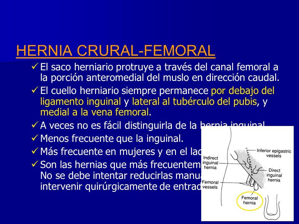 HERNIA CRURAL-FEMORAL El saco herniario protruye a través del canal femoral a la porción anteromedial del muslo en dirección caudal. El cuello herniar