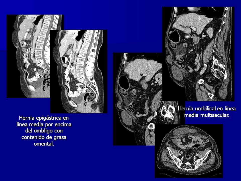 Hernia epigástrica en línea media por encima del ombligo con contenido de grasa omental. Hernia umbilical en línea media multisacular.