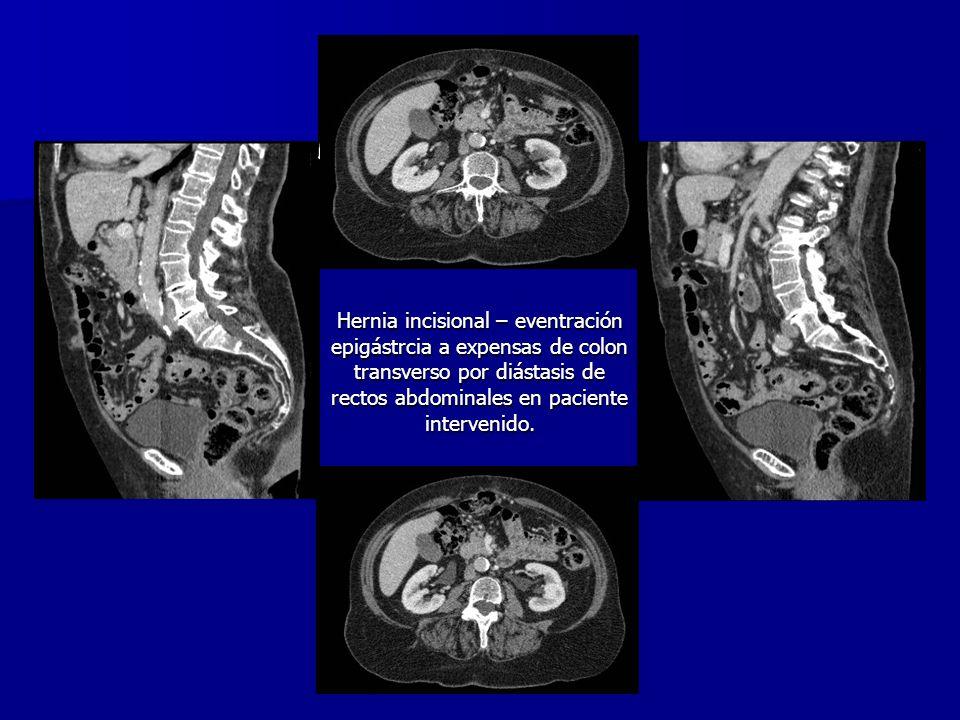 Hernia incisional – eventración epigástrcia a expensas de colon transverso por diástasis de rectos abdominales en paciente intervenido.