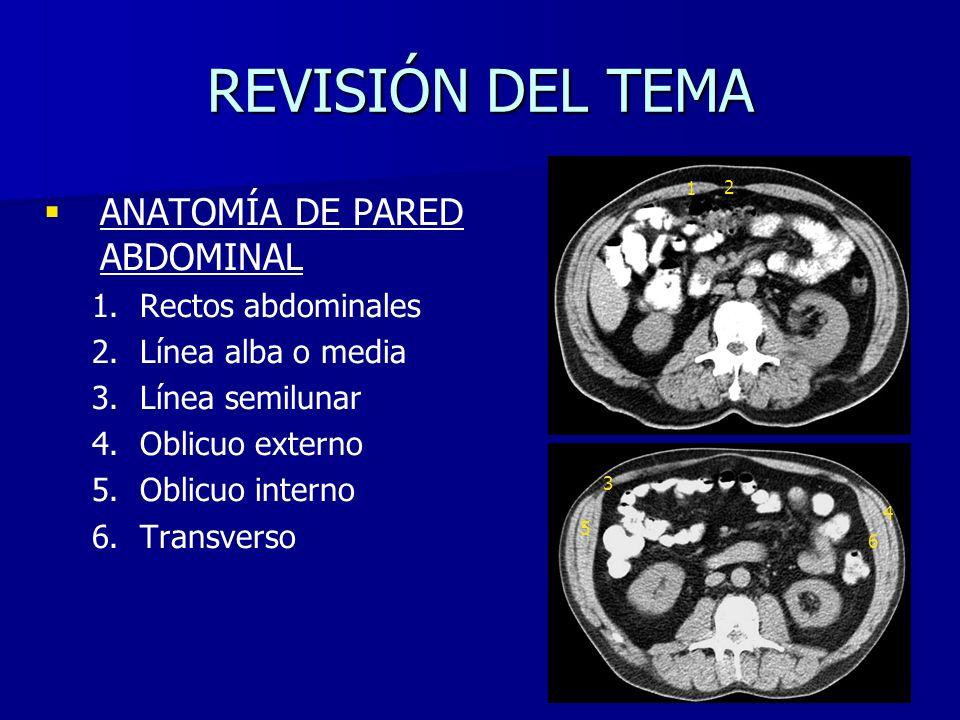 Hernia inguinal directa izquierda con parte de sigma sin signos de sufrimiento.
