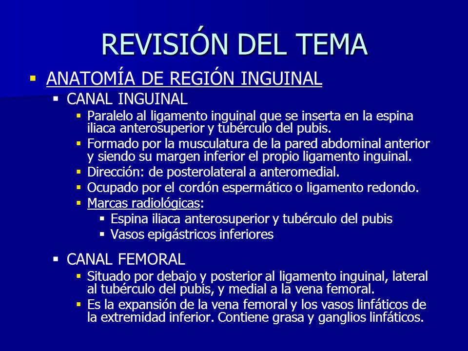 ANATOMÍA DE REGIÓN INGUINAL CANAL INGUINAL Paralelo al ligamento inguinal que se inserta en la espina iliaca anterosuperior y tubérculo del pubis. For