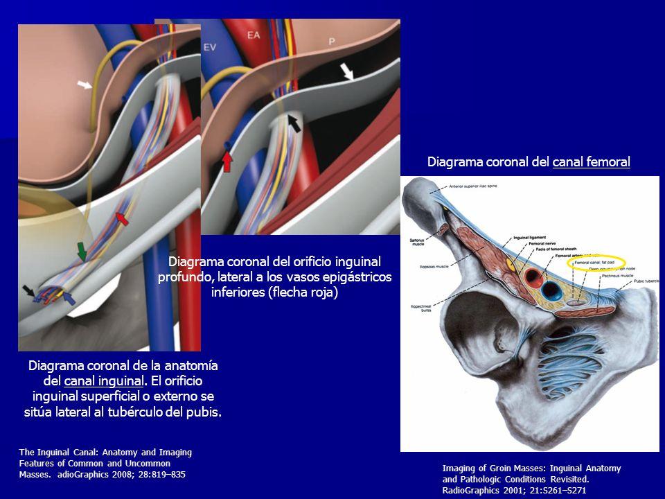 Diagrama coronal de la anatomía del canal inguinal. El orificio inguinal superficial o externo se sitúa lateral al tubérculo del pubis. Diagrama coron