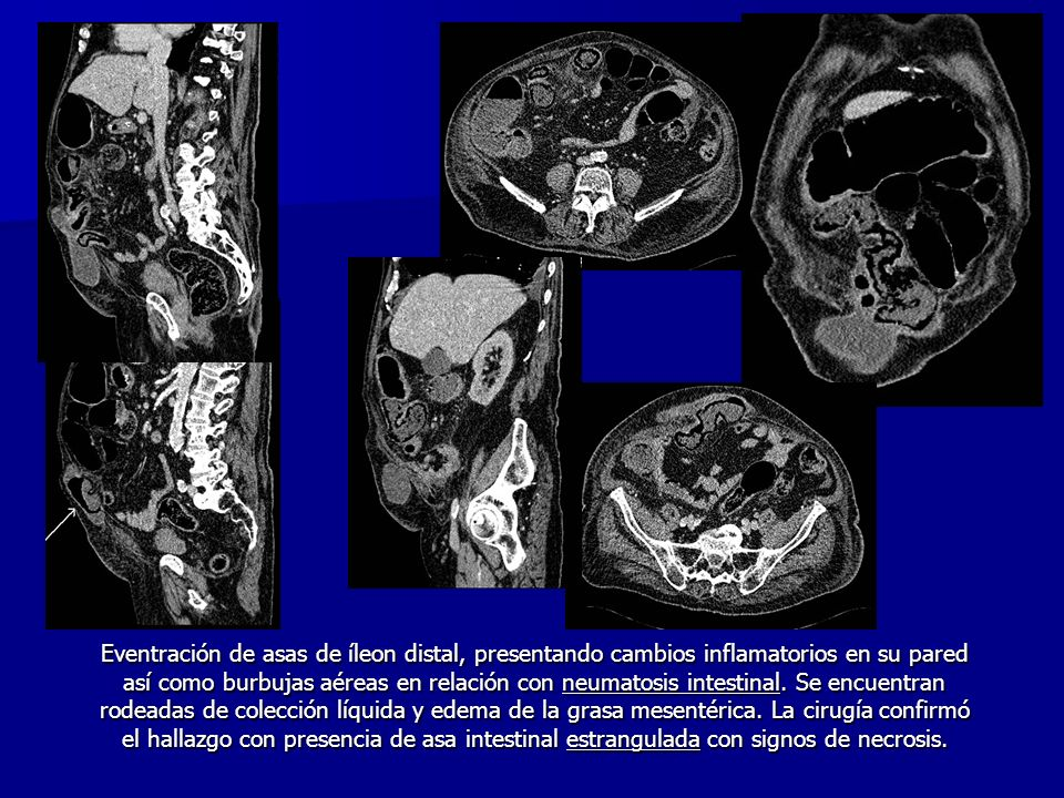 Eventración de asas de íleon distal, presentando cambios inflamatorios en su pared así como burbujas aéreas en relación con neumatosis intestinal. Se