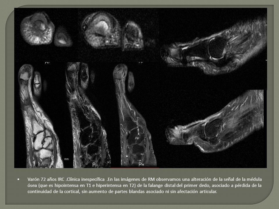 Varón 72 años IRC.Clínica inespecífica.En las imágenes de RM observamos una alteración de la señal de la médula ósea (que es hipointensa en T1 e hiper