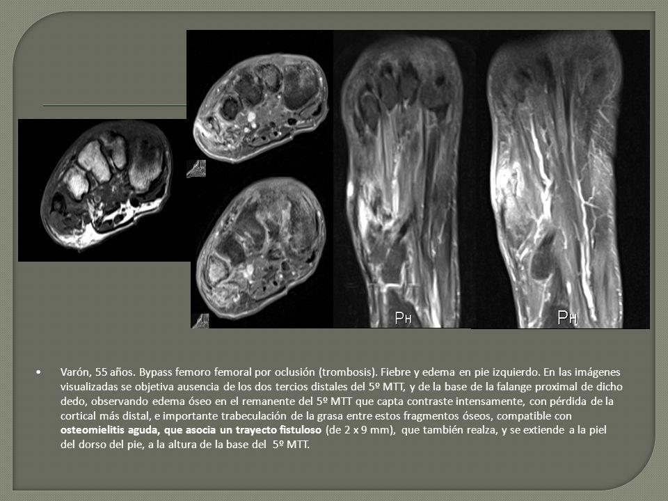 Varón, 55 años. Bypass femoro femoral por oclusión (trombosis). Fiebre y edema en pie izquierdo. En las imágenes visualizadas se objetiva ausencia de