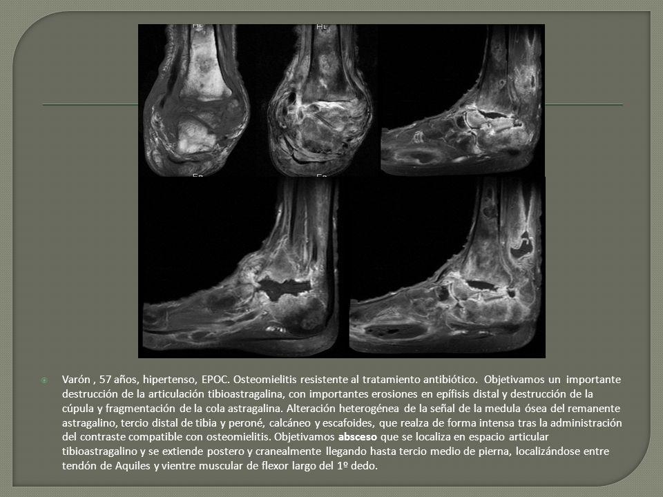 Varón, 57 años, hipertenso, EPOC. Osteomielitis resistente al tratamiento antibiótico. Objetivamos un importante destrucción de la articulación tibioa