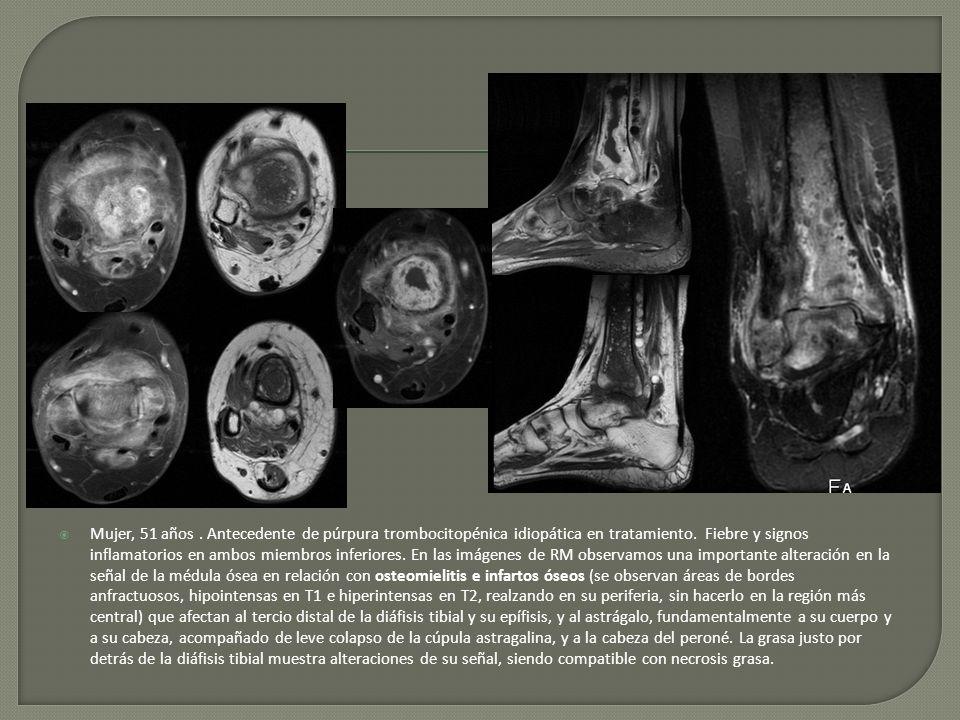 Mujer, 51 años. Antecedente de púrpura trombocitopénica idiopática en tratamiento. Fiebre y signos inflamatorios en ambos miembros inferiores. En las