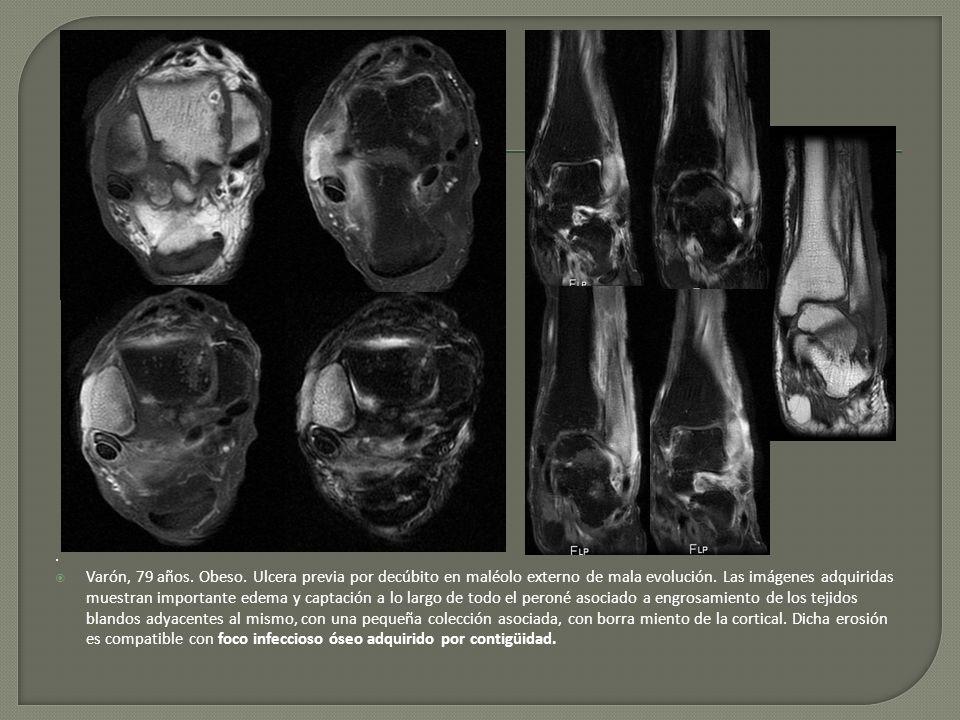 . Varón, 79 años. Obeso. Ulcera previa por decúbito en maléolo externo de mala evolución. Las imágenes adquiridas muestran importante edema y captació