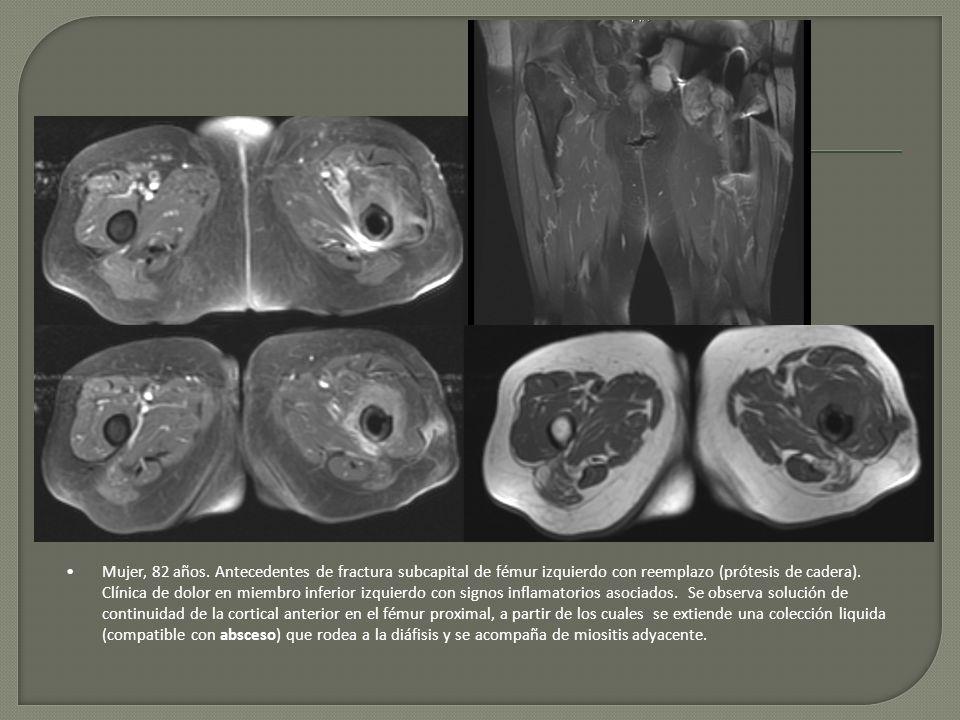 Mujer, 82 años. Antecedentes de fractura subcapital de fémur izquierdo con reemplazo (prótesis de cadera). Clínica de dolor en miembro inferior izquie