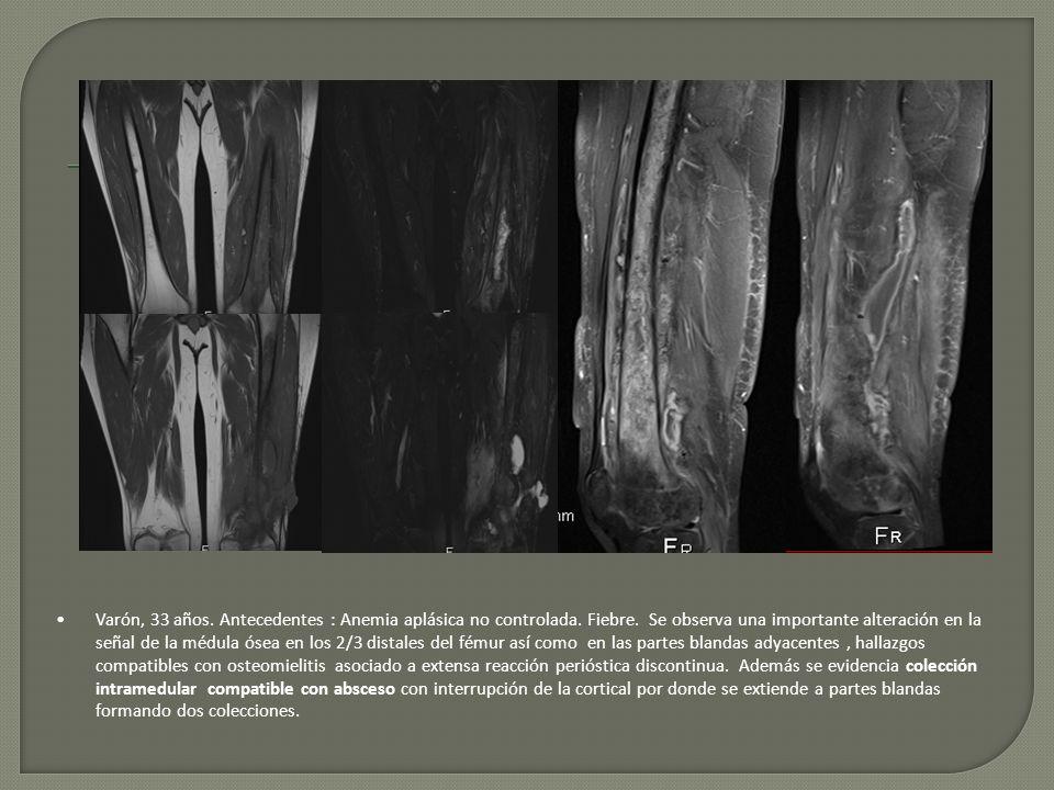 Varón, 33 años. Antecedentes : Anemia aplásica no controlada. Fiebre. Se observa una importante alteración en la señal de la médula ósea en los 2/3 di