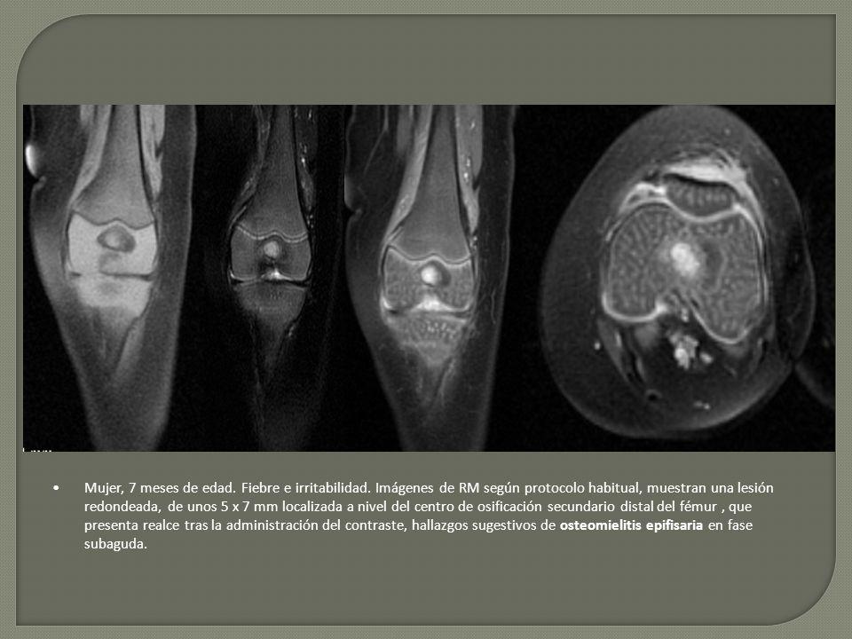 Mujer, 7 meses de edad. Fiebre e irritabilidad. Imágenes de RM según protocolo habitual, muestran una lesión redondeada, de unos 5 x 7 mm localizada a