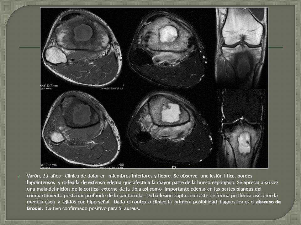Varón, 23 años. Clinica de dolor en miembros inferiores y fiebre. Se observa una lesión lítica, bordes hipointensos y rodeada de extenso edema que afe