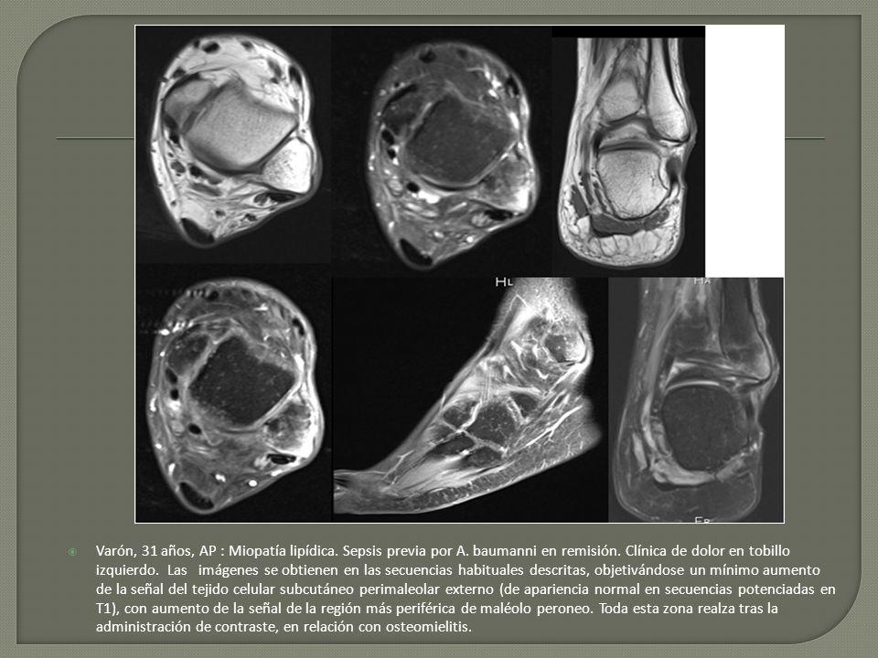Varón, 31 años, AP : Miopatía lipídica. Sepsis previa por A. baumanni en remisión. Clínica de dolor en tobillo izquierdo. Las imágenes se obtienen en
