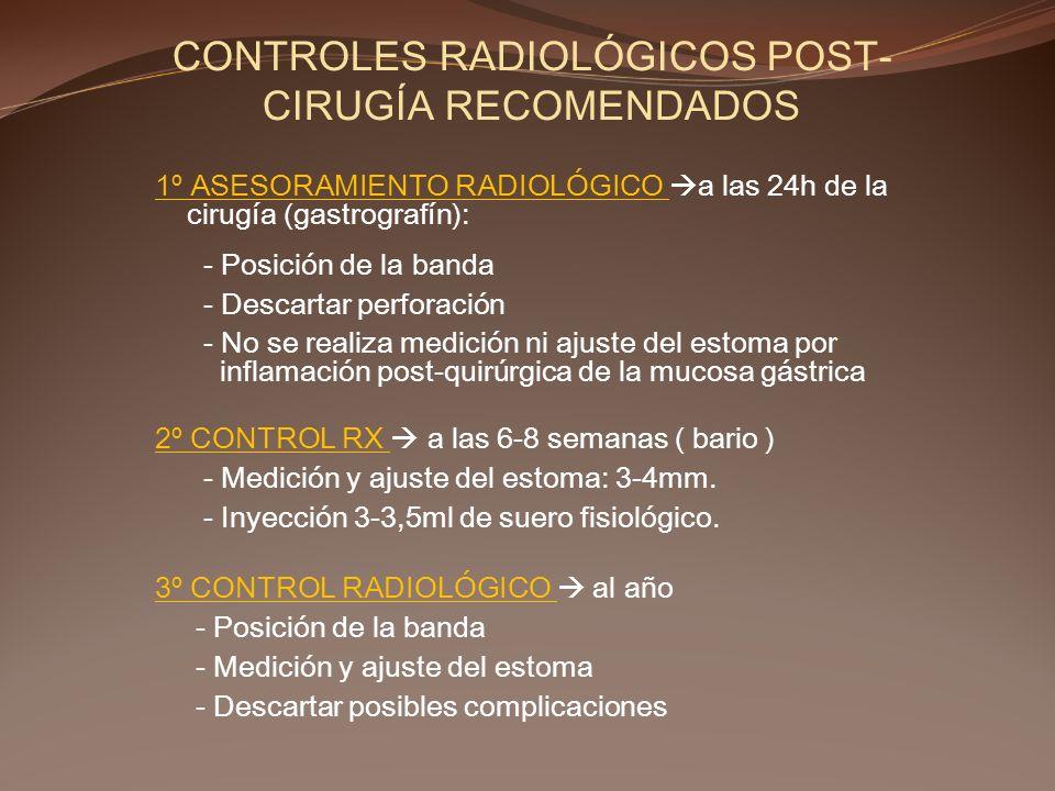 CONTROLES RADIOLÓGICOS POST- CIRUGÍA RECOMENDADOS 1º ASESORAMIENTO RADIOLÓGICO a las 24h de la cirugía (gastrografín): - Posición de la banda - Descar