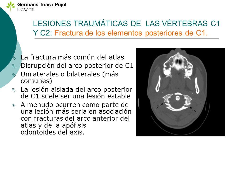 LESIONES TRAUMÁTICAS DE LAS VÉRTEBRAS C1 Y C2: Fractura de los elementos posteriores de C1. La fractura más común del atlas Disrupción del arco poster