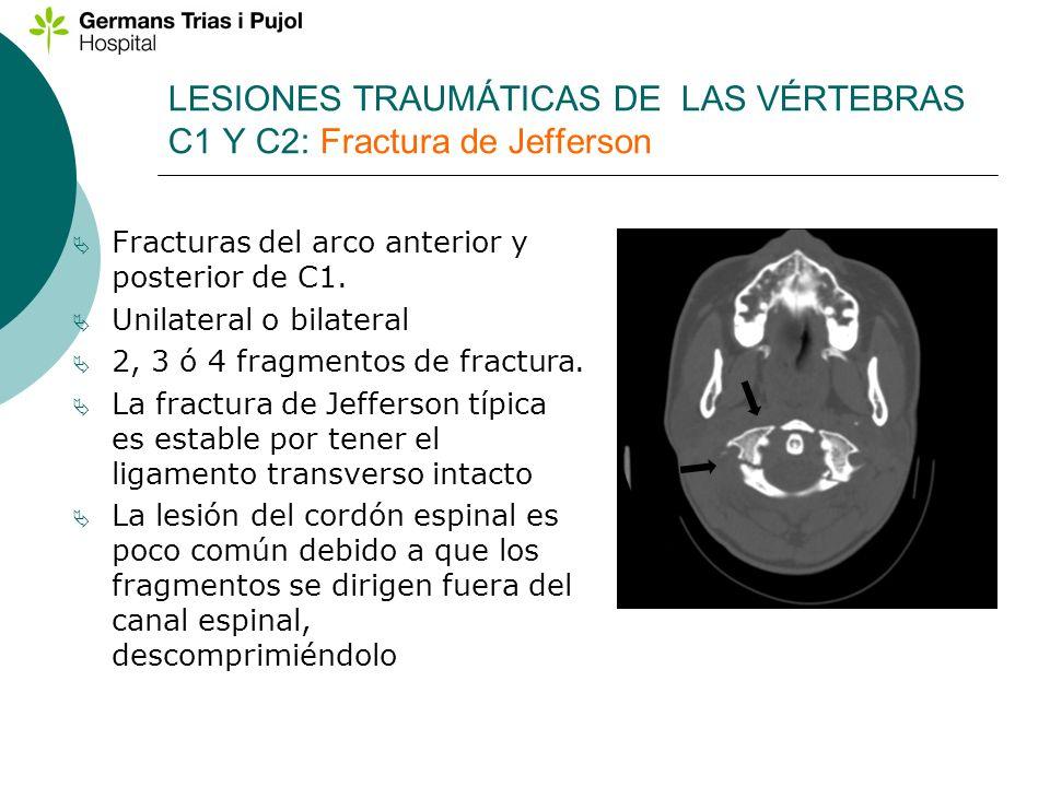 LESIONES TRAUMÁTICAS DE LAS VÉRTEBRAS C1 Y C2: Fractura de Jefferson Fracturas del arco anterior y posterior de C1. Unilateral o bilateral 2, 3 ó 4 fr