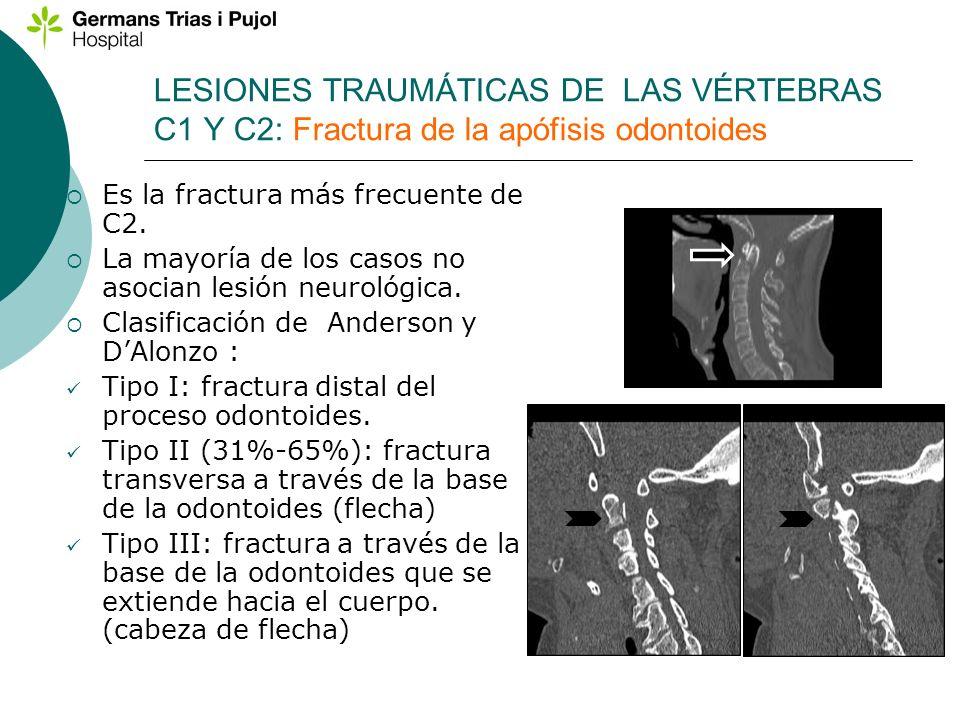 LESIONES TRAUMÁTICAS DE LAS VÉRTEBRAS C1 Y C2: Fractura de la apófisis odontoides Es la fractura más frecuente de C2. La mayoría de los casos no asoci