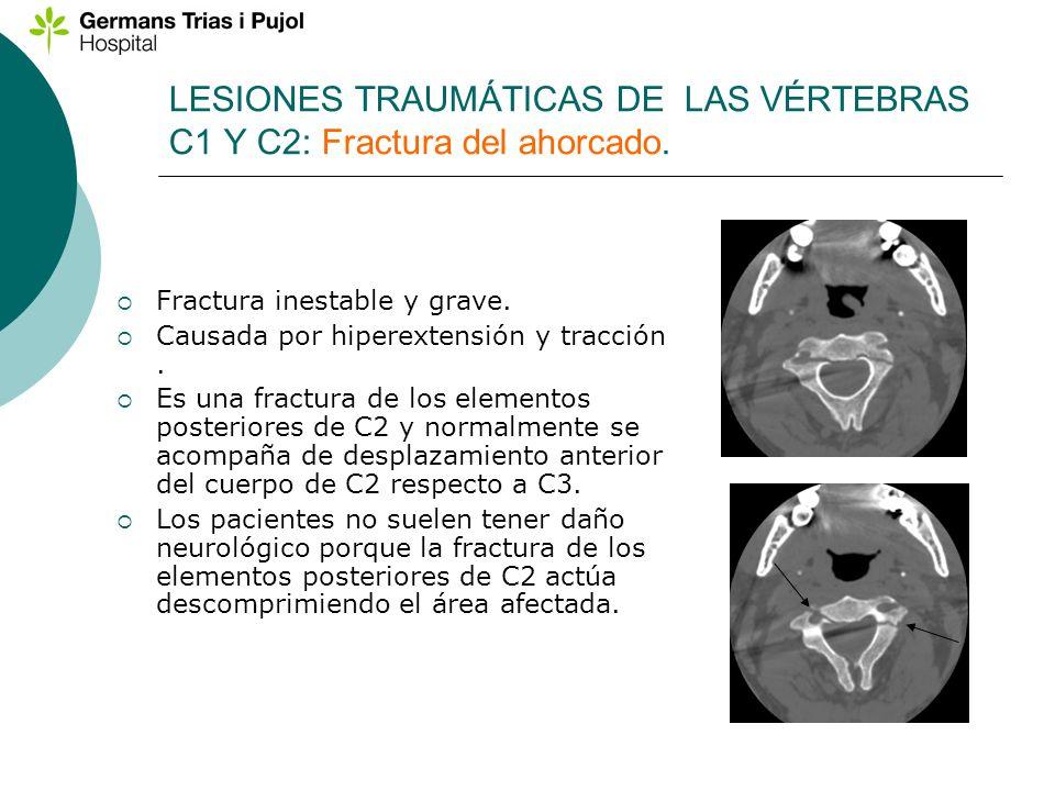 LESIONES TRAUMÁTICAS DE LAS VÉRTEBRAS C1 Y C2: Fractura del ahorcado. Fractura inestable y grave. Causada por hiperextensión y tracción. Es una fractu