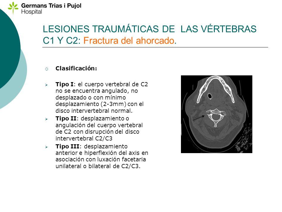 Clasificación: Tipo I: el cuerpo vertebral de C2 no se encuentra angulado, no desplazado o con mínimo desplazamiento (2-3mm) con el disco intervertebr