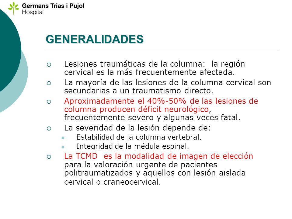 GENERALIDADES Lesiones traumáticas de la columna: la región cervical es la más frecuentemente afectada. La mayoría de las lesiones de la columna cervi