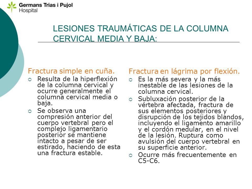 LESIONES TRAUMÁTICAS DE LA COLUMNA CERVICAL MEDIA Y BAJA: Fractura en lágrima por flexión. Es la más severa y la más inestable de las lesiones de la c