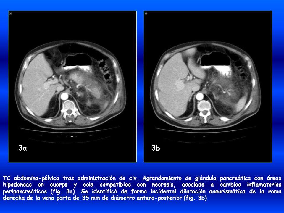 TC abdomino-pélvica tras administración de civ. Agrandamiento de glándula pancreática con áreas hipodensas en cuerpo y cola compatibles con necrosis,