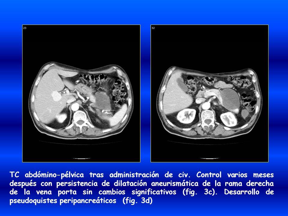 TC abdómino-pélvica tras administración de civ. Control varios meses después con persistencia de dilatación aneurismática de la rama derecha de la ven