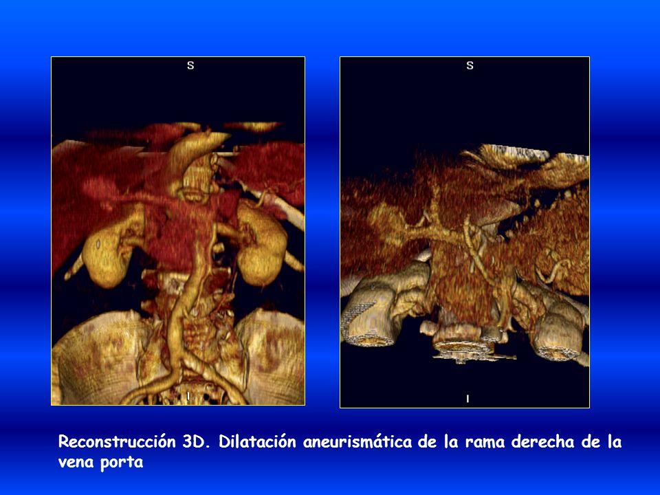 Reconstrucción 3D. Dilatación aneurismática de la rama derecha de la vena porta