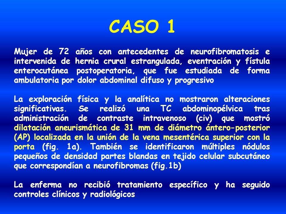 CASO 1 Mujer de 72 años con antecedentes de neurofibromatosis e intervenida de hernia crural estrangulada, eventración y fístula enterocutánea postope