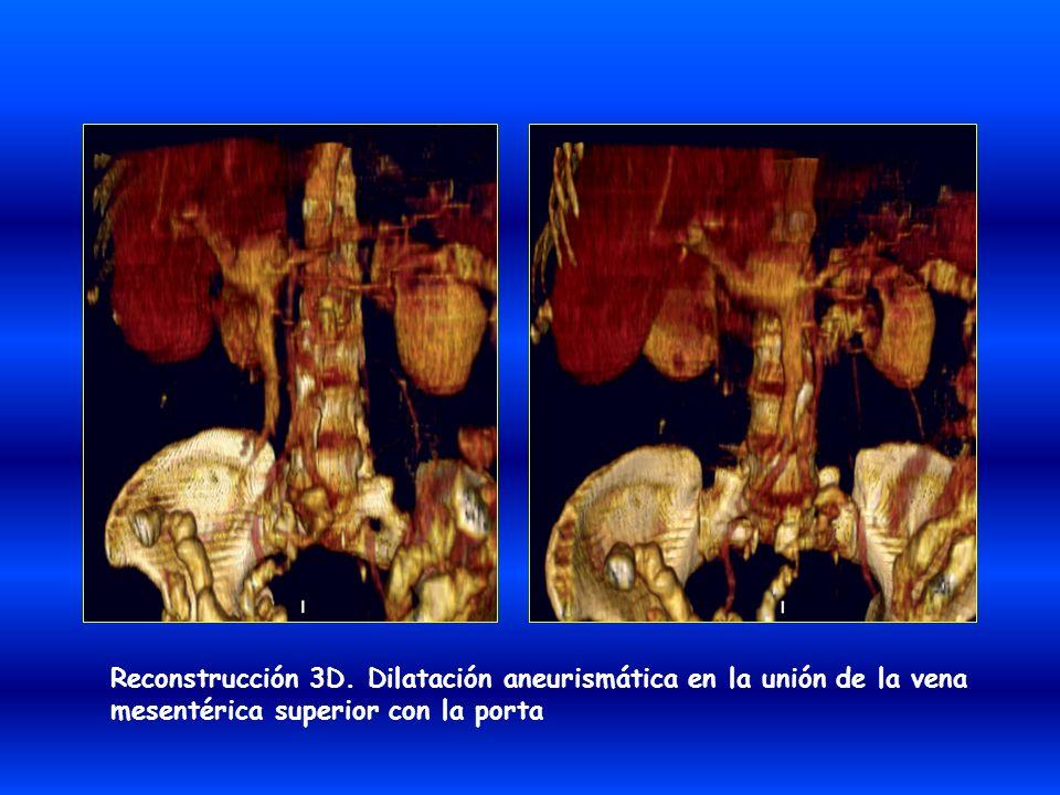 Reconstrucción 3D. Dilatación aneurismática en la unión de la vena mesentérica superior con la porta