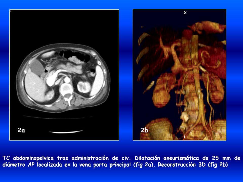 TC abdominopelvica tras administración de civ. Dilatación aneurismática de 25 mm de diámetro AP localizada en la vena porta principal (fig 2a). Recons