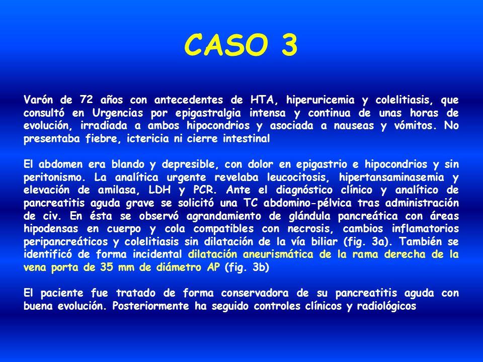 CASO 3 Varón de 72 años con antecedentes de HTA, hiperuricemia y colelitiasis, que consultó en Urgencias por epigastralgia intensa y continua de unas