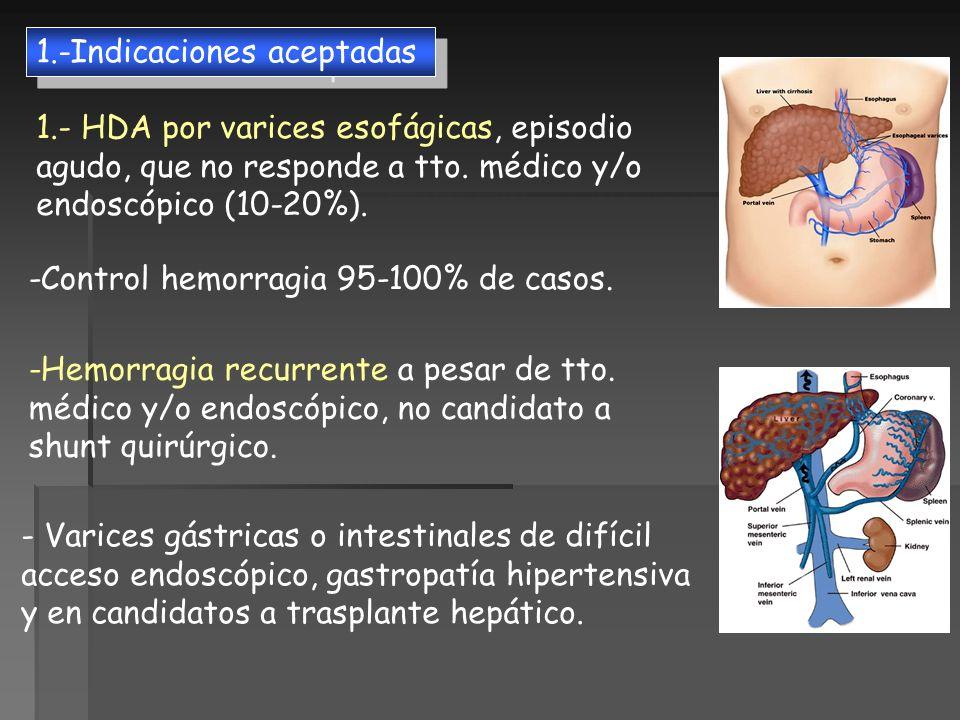 1.- HDA por varices esofágicas, episodio agudo, que no responde a tto. médico y/o endoscópico (10-20%). -Control hemorragia 95-100% de casos. -Hemorra