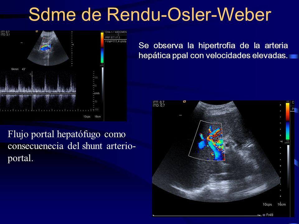 Se observa la hipertrofia de la arteria hepática ppal con velocidades elevadas. Sdme de Rendu-Osler-Weber Flujo portal hepatófugo como consecuenecia d